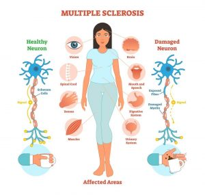 Multiple Sclerosis Affected Areas
