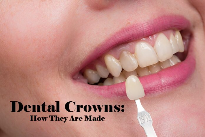 Dental Crowns - How They Are Made in Australia