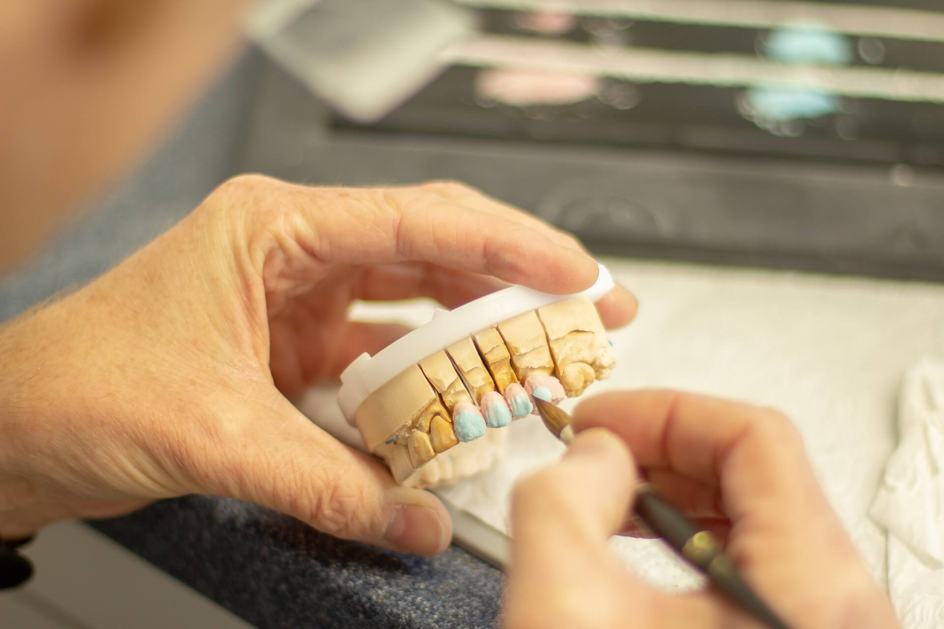 Tooth Replacement Treatment - Dental Crowns