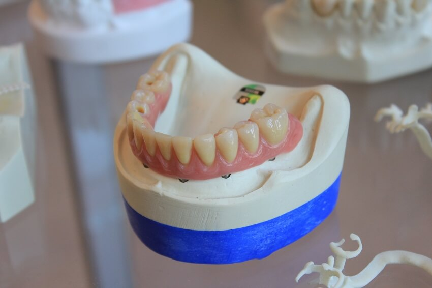 Benefits of Cosmetic Dentist