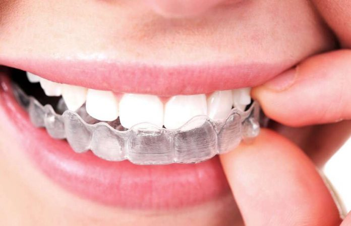 Invisalign Devices Are Removable