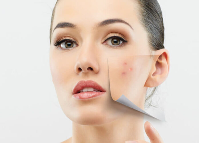 What Can Your Dermatologist Do For Your Acne?